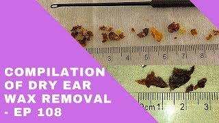 DRY EAR WAX REMOVAL COMPILATION - EP 108