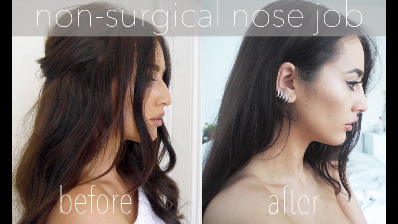 Non Surgical Nose Job Before And After Sophie Milner