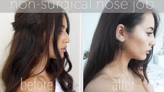 One of Fashion Slave's most viewed videos: Non-Surgical Nose Job | Before and After | Sophie Milner Fashion Slave