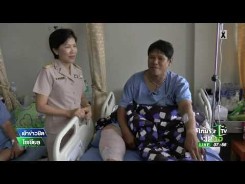 พบโรคแบคทีเรียกินเนื้อมนุษย์ | 26-04-60 | เช้าข่าวชัดโซเชียล