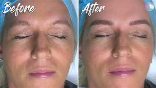 Microblading. Before & After