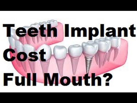 Teeth Implant Cost Full Mouth Secrets?