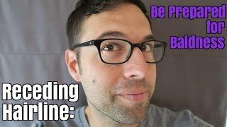 Receding Hairline: Be Prepared for Baldness