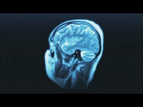 Как психика влияет на физическое здоровье? (Психосоматика)