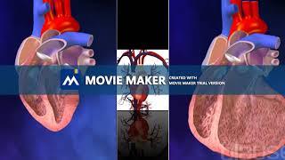 Cardiovascular enfermedad tipos de
