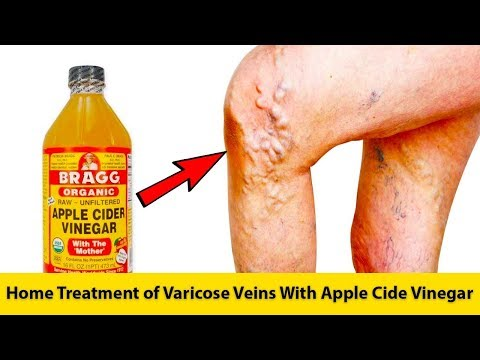 home-treatment-of-varicose-veins-with-apple-cide-vinegar-|-get-rid-of-varicose-veins