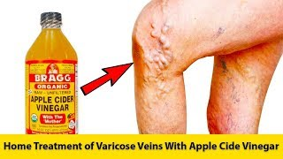 Home Treatment of Varicose Veins With Apple Cide Vinegar | GET RID OF VARICOSE VEINS