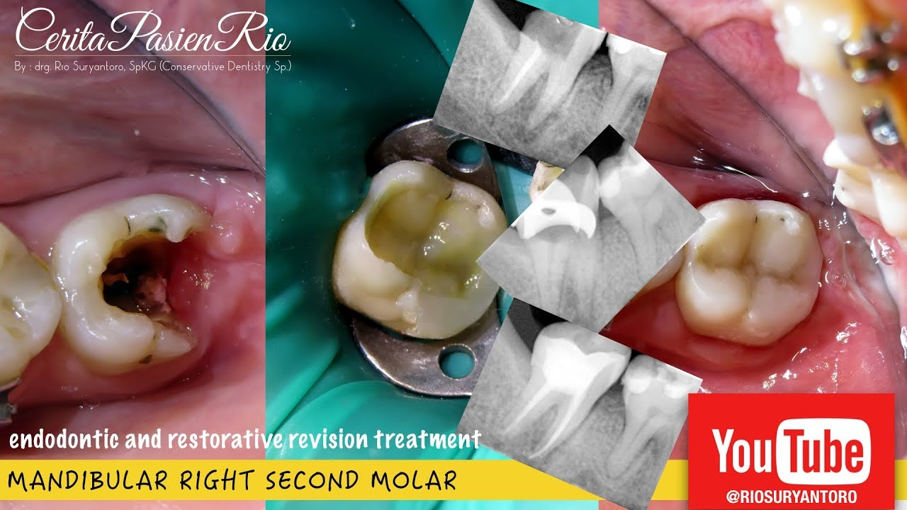 Endodontic Revision On Mandibular Second Molar Perawatan Gigi
