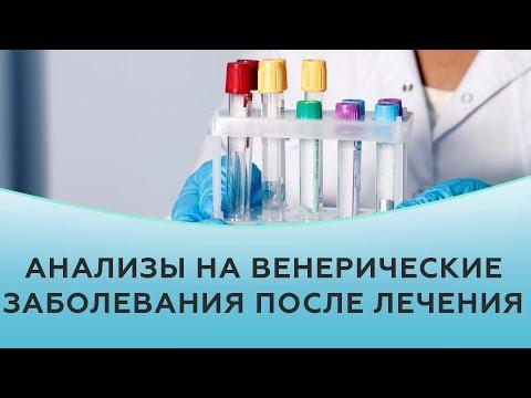Когда сдавать анализы на венерические заболевания после лечения