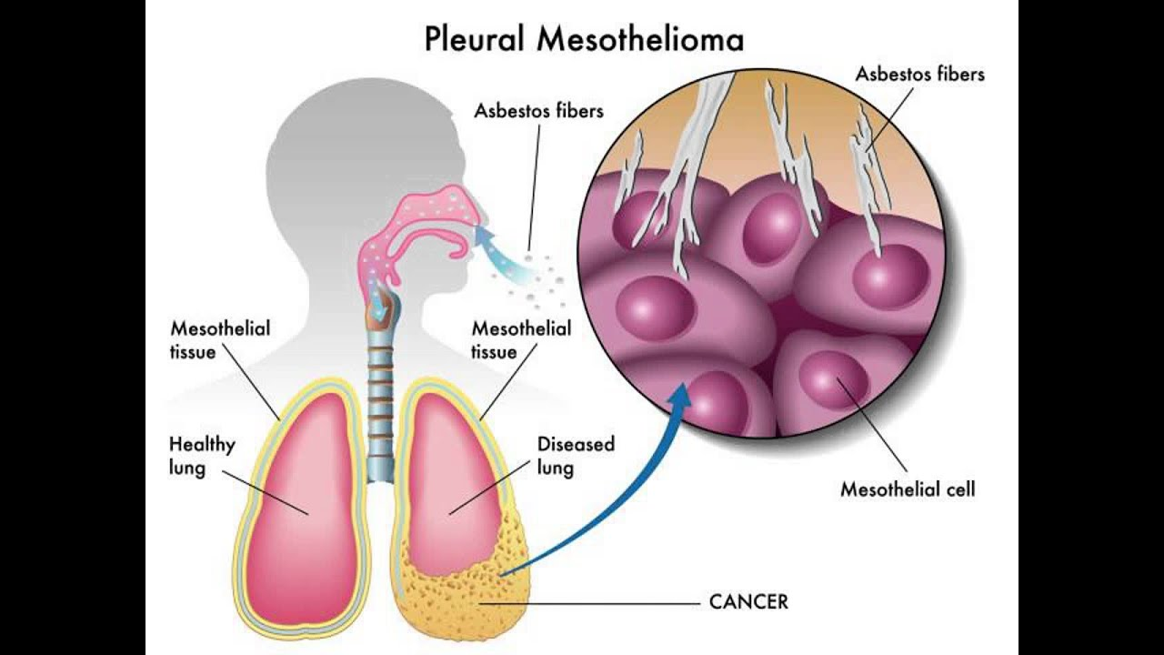 asbestos cancer mesothelioma essay Have no history of asbestos exposure even after detailed assessment therefore,  there  malignant mesothelioma from exposure to carbon nano- tubes (cnts)  and other  in summary, despite a variety of methodologic con- cerns, there is.