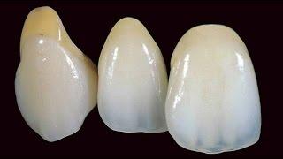 All ceramic , цельнокерамические коронки , виниры , отбеливание зубов , коронки на зубы , Сурайкин(, 2016-08-27T18:12:04.000Z)