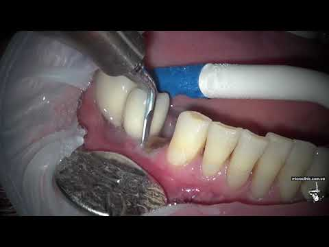 Как посчитать зубы во рту