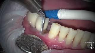 Как удаляют зубы ??? Осторожно, много удалений...