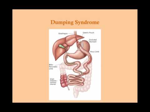Other Gastric Disorders - CRASH! Medical Review Series