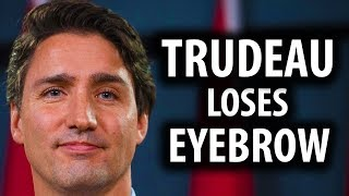Justin Trudeau Loses His Eyebrows & Dignity at G7 Summit
