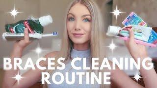 Braces Cleaning Routine   Water Flosser, Keeping Teeth White, Brushing etc.