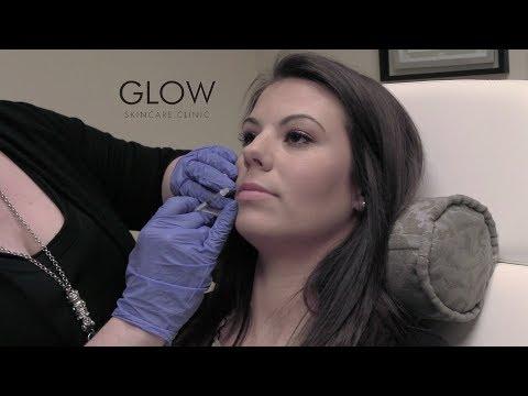 Glow Skincare Lips
