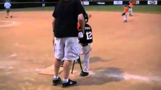 Eight Year Old Kid Plays Ball With One Leg