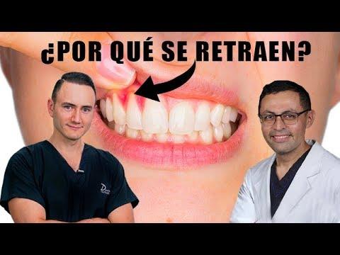 ¿Por qué se retraen las encías?   Causa, Tratamiento y Costo