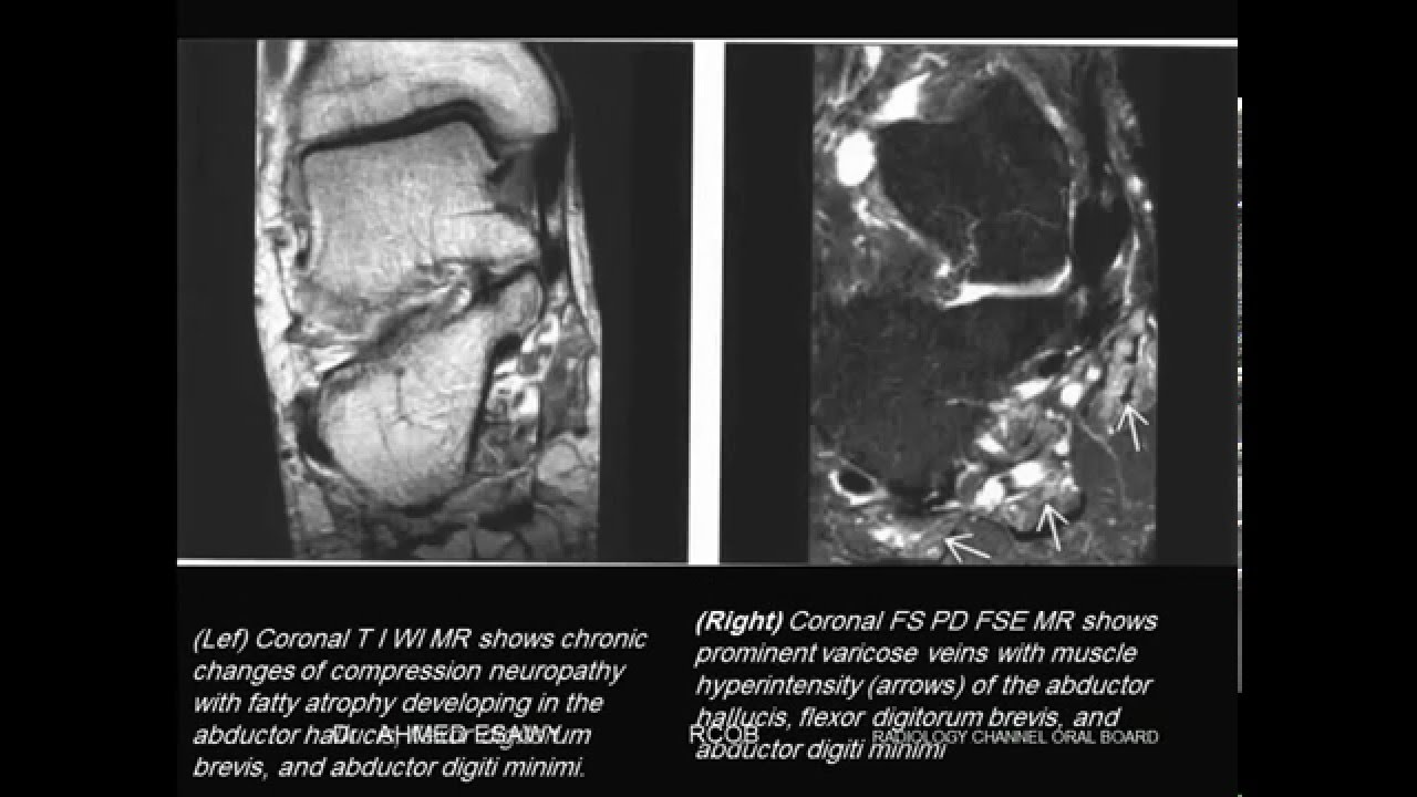 29-RADIOLOGY CHANNEL IMAGING ORAL BOARD MRI ANKLE FOOT - YouTube