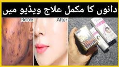 hqdefault - Skin Pimples On Face In Urdu