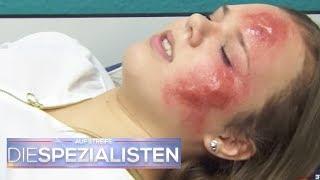 Make-up Fail: Leonie will keine riesen Pickel mehr haben! | Die Spezialisten | SAT.1 TV