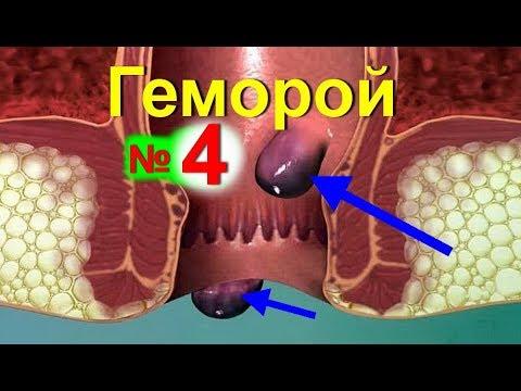 Лечение геморроя в домашних условиях народными средствами - №4