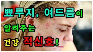 얼굴 뾰루지, 여드름이 알려주는 건강 적신호!