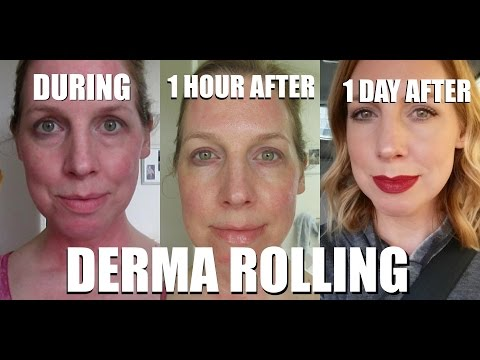 DERMA ROLLING STEP BY STEP | DO'S & DON'TS!