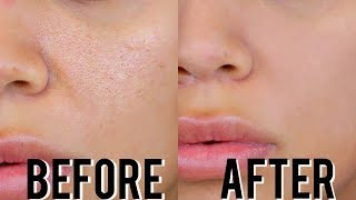 HOW TO MINIMIZE ENLARGED PORES THE ULTIMATE GUIDE SKINCARE MAKEUP TIPS