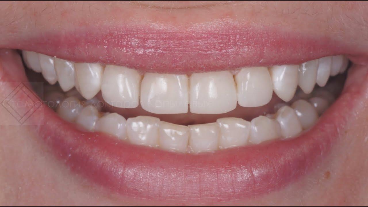 композитные виниры стоматология