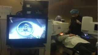 Keratoconus - Intacs Surgery Provides Miracle Vision Improvement - Pt 1