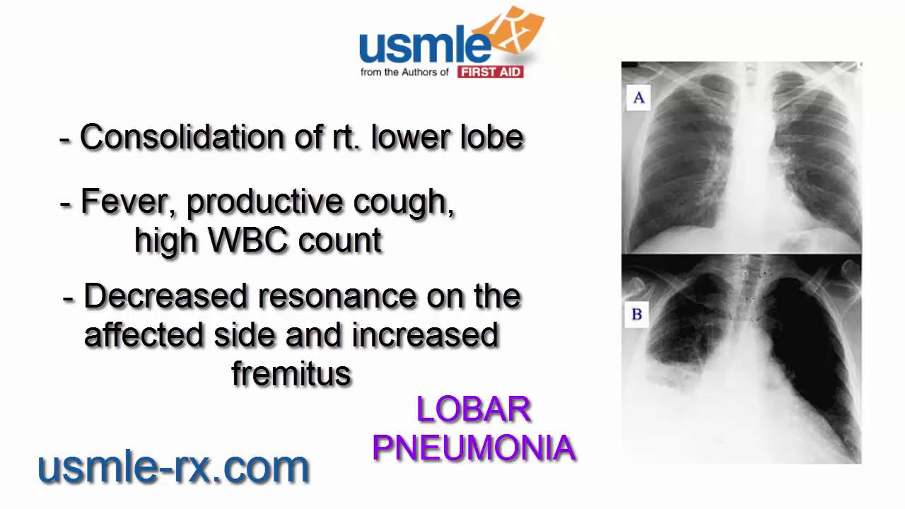 usmle rx lobar pneumonia youtube
