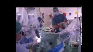 видео Лечение опухолей головного мозга в Израиле