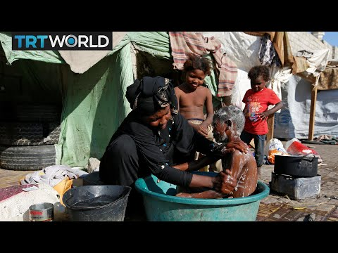 The War in Yemen: Lack of aid leaves many children malnourished
