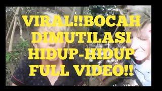 VIRAL!! BOCAH ASAL BRAZIL DI MUTILASI HIDUP-HIDUP