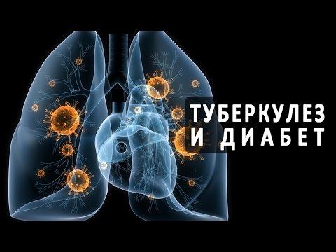 Базедова болезнь - симптомы, причины, лечение