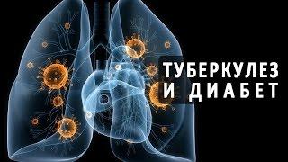видео Диагностика туберкулеза — Необходимые анализы и методы диагностики