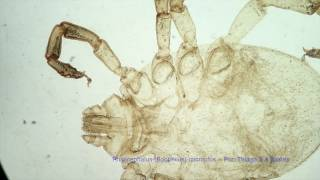 Rhipicephalus Boophilus microplus ♀