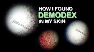 I Found Demodex In My Skin