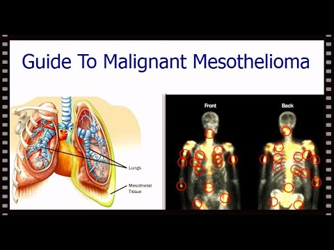 guide-to-malignant-mesothelioma