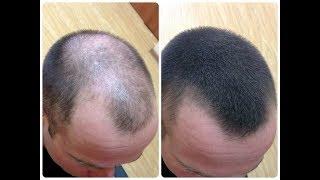 Реально действующая маска от выпадения волос, как для женщин, так и для мужчин
