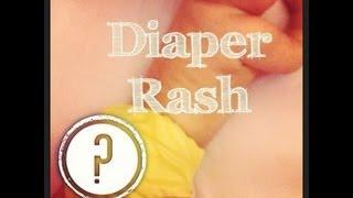 Diaper Rash(Possible Causes)
