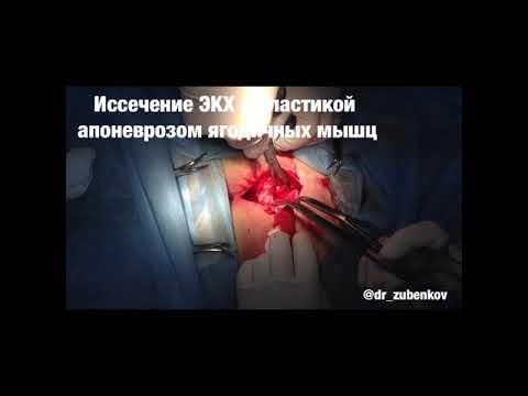 Операция иссечение ЭКХ с пластикой апоневрозом ягодичных мышц #dr_zubenkov