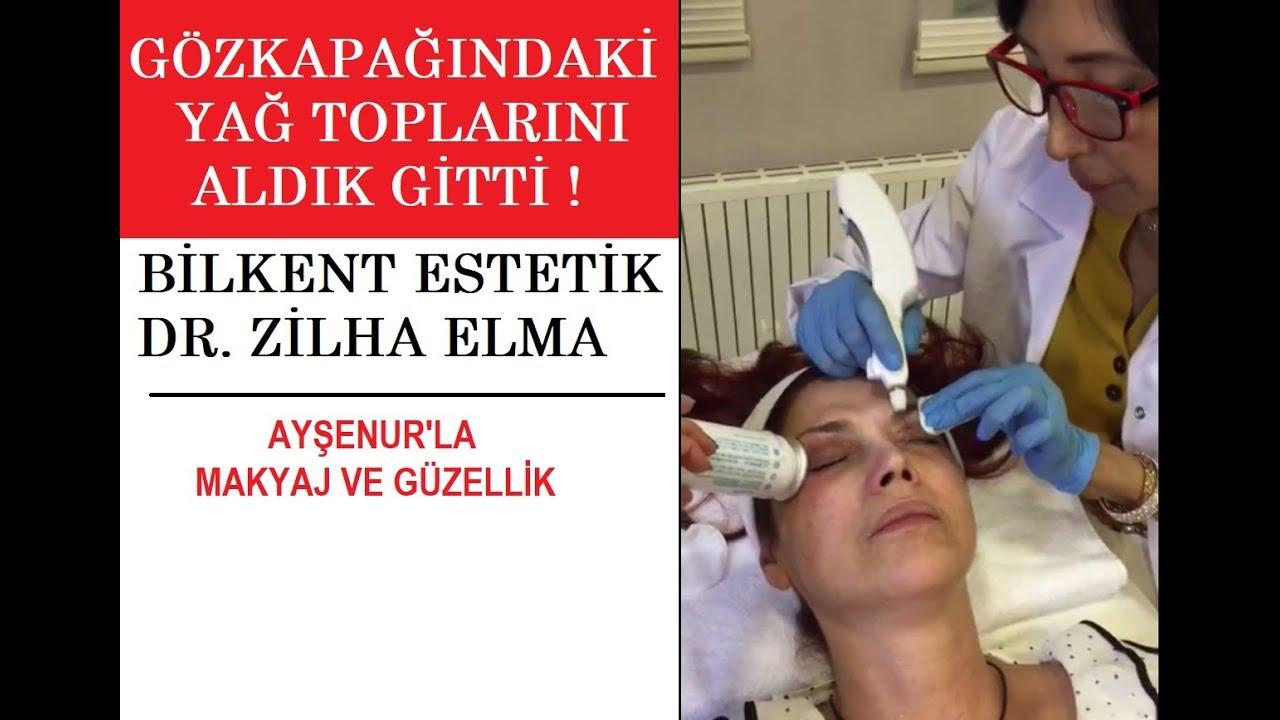 Göz Kapağımdaki yağ topları şimdilik gitti! Hikayesi videoda Dr.Zilha Elma'ya teşekkürlerimle