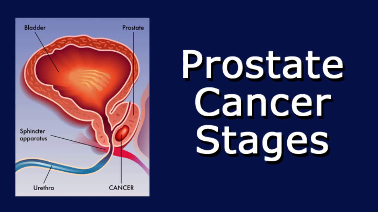 prostate cancer stages youtube