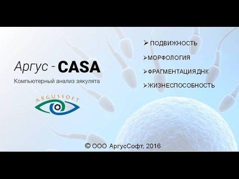АРГУС CASA (анализ сперматозоидов)