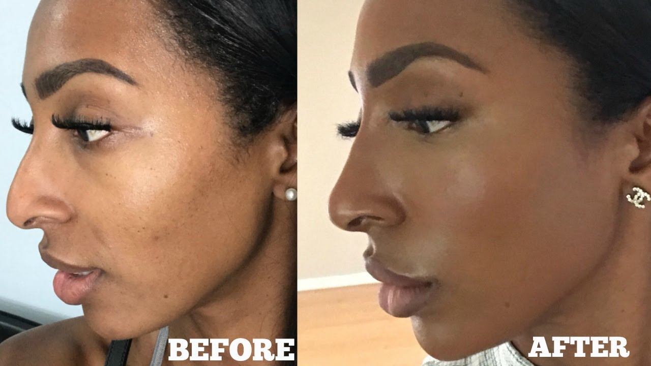 Get A Nose Job On Your Lunch Break