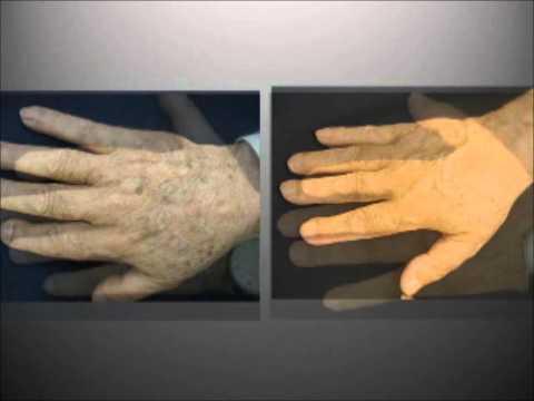 Manchas piel tratamiento con láser