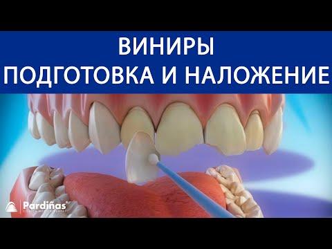 Как одеваются виниры на зубы